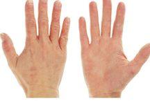 Eczema - Organic Remedies / Organic Eczema Creams and remedies.  Unlock the healing power of nature.