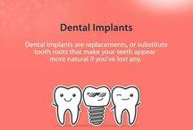 Dental Implant / Explore more about Dental Implant.