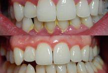 Güzel dişlerim