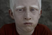 albinos man