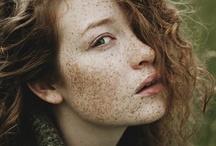 Redhead, Freckles