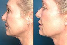 VaserPlazty / VASERPlazty is the combination of VASER assisted liposuction and J Plasma sub-dermal skin tightening. This minimally invasive procedure uses cold plasma energy under the skin to lift, tighten and rejuvenate the lower face, neck, arms and trunk. It avoids the scars and potential complications of major surgery and produces natural results with little downtime. Schedule your free consultation with Adley DaSilva, PA our expert in the unique combination procedure.