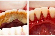 oral health.