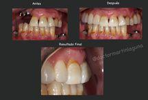 Casos / Casos expuestos en el Blog www.doctormartinlaguna.com