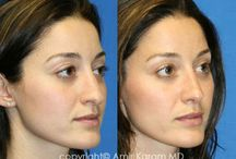 Amir M. Karam, MD : Rhinoplasty / Perhaps no other operation in plastic surgery has a greater impact in enhancing the way you look than rhinoplasty. Rhinoplasty is a procedure designed to improve the shape of the nose. Even a subtle change can have a big impact on the attractiveness and balance of the face.Primary rhinoplasty indicates that it is the first time an operation is being performed. The first operation offers the best opportunity to obtain an excellent and predictable outcome.