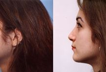 Rhinoplasty / Nasal reshaping, or Rhinoplasty, is more commonly referred to as a nose job. Rhinoplasty refines the shape of the nose to compliment your individual facial features and enhance the natural contours of your face. Of all plastic surgery procedures, rhinoplasty is among the most common.