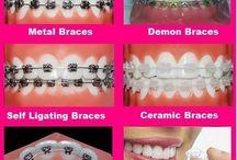 Braces- Orthodontics