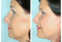 Before & After: Facelift / Here you can view actual patient before and after photographs from surgeons who are ASPS members and certified by The American Board of Plastic Surgery. These photographs represent typical results, but not everyone who undergoes plastic surgery will achieve the same.