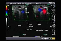 gallery of vascular Doppler images