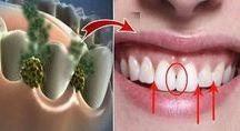 Astuces dents