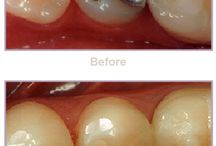 Tooth Fillings Before & After / Las Vegas and Summerlin Dentist Dr. Afshin Arian shares the differences between tooth colored composite fillings and traditional amalgam fillings.
