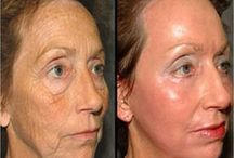Before & After / Here's what Hulya's can do for you!