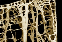 beauty of the bones / osteogenesis imperfecta is a brittle bone disease