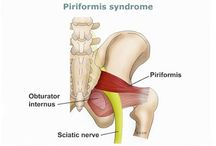 Info obat sindrom piriformis