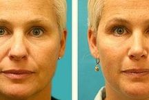 Face Acupressure Exercises For The Face And Neck / Ways To Carry Out Face Training Aerobics To Improve Your Face