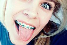 I love turquoise braces