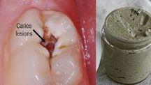 σπιτικη οδοντοκρεμα