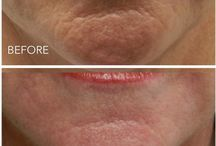 Rejuvapen / Rejuvapen at our cosmetic clinic to treat acne scars, pores, wrinkles on the face and tighten the skin.