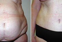 Tummy Tuck / Before and After Photos of Tummy Tuck Surgery