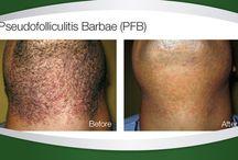 Laser Treatments / Hair Reduction & Skin Rejuvenation & Pigmentation Removal