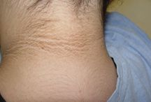 Pseudoacanthosis Nigricans / A skin disorder characterized by dark, velvety, thickened skin occurring mainly on the folds like the armpit and back of neck. It is usually an indication of underlying hormonal imbalance, though a detailed history is needed to rule out other causes.