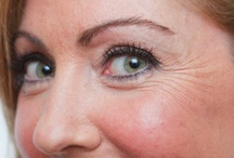 Best Treatment Eye Wrinkles / When it comes to staying wrinkle free (LOL) it helps to know what are the best treatments for eye wrinkles