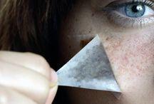 Freckles c: