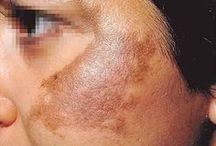 mancha na pele