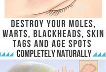 destroy moles dark spots etc