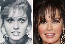Marie Osmond Before and After / Marie Osmond before and after plastic surgery photos
