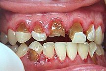 Dental Erosion / This board is all about softening, dissolving & decaying of teeth caused due to excessive exposure to present day ingredients & chemicals in food & drink (High Sugar, High Fizz, High Carb, High Everything!)