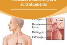 hernia hiato