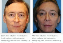 Cheek Implant Plastic Surgery Seattle | Bellevue / We specialize in only the face and neck and cheek implant plastic surgery.