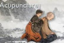Acupuncture pain Sandy springs For Treatment Care