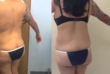 Abdominal Surgery / Plastic surgery of the stomach area including tummy tuck, mommy makeover and liposuction.