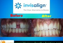 Invisalign Before and After / Check out what problems can be treated with Invisalign