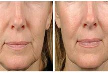 Skin Lift Clinic / Thermage skin tightening, skin lifting, skin sagging and anti-aging treatment in Delhi, India. Browse http://skinliftclinic.com/ for more.