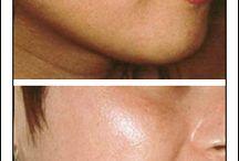 Homemade Skincare Remedy