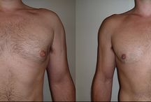 Correct Male Breast Enlargement - Gynecomastia / Helping men correct the condition of male enlarged breasts...through surgery. This condition is called Gynecomastia and can be completely corrected by Dr. Adrian Lo, a specialist who treats hundreds of men per year with this condition.
