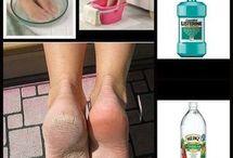 durezas de los pies