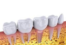 Videos | Dentist Moonee Ponds
