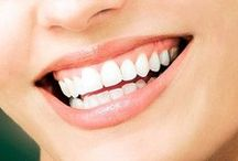 Edmonton teeth whitening cost