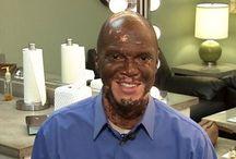 Lee Thomas Vitiligo Story