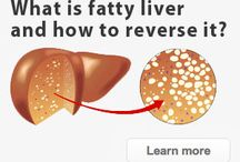 Liver disease and Health / Causes of Liver disease and treatment