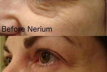 Nerium Before & After