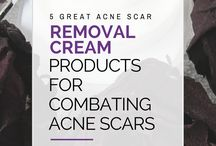 Acne Scar Removal Tips and Blog Posts from // LoveForYourSkin.net