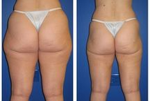 Liposuction - Outer Thighs / Dr. William Hall specializes in liposuction treatments of the outer thighs. He uses a variety of techniques for surgery such as laser lipo and smart lipo. Call today to schedule your complimentary consultation to learn more about liposuction cost, liposuction pros and cons, and liposuction side effects at 480-946-7100. View the Infini Phoenix Liposuction website at Infiniskin.com to see additional liposuction before and after photos, videos, and reviews.