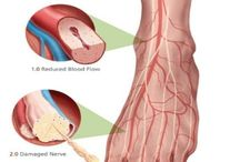 #neuropathy treatment