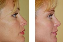 Cosmetic Surgery / Information on various cosmetic surgery procedures including facelift, rhinoplasty, eye lift, and much more from leaders in the field of plastic surgery.