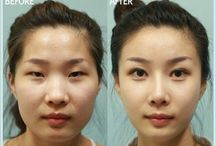 Before and after plastic surgery / The before and after surgery photos see the difference